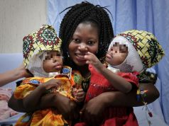 Rome doctors separate Siamese twins joined at head